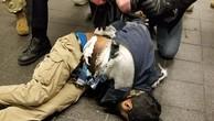 Nghi phạm bị bỏng tay và bụng sau vụ nổ bom. Ảnh:New York Post